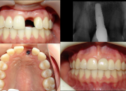 Implantes dentales  sin costo de honorarios