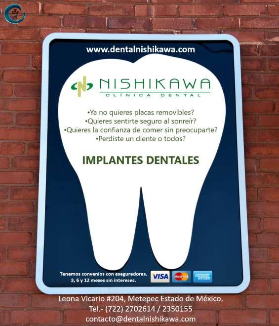 Rehabilitación con implantes en calimaya